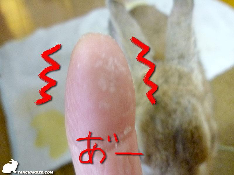 指についた耳垢